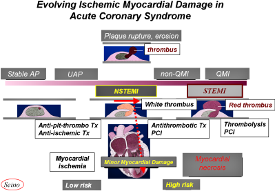 FIGURE I: Evolving Ischemic Myocardial Damage in ACS